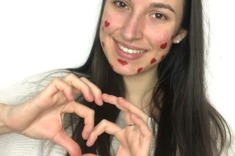 Love et acné positive
